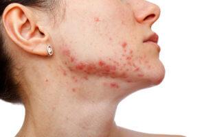 Стафилококк вызывает кожные высыпания