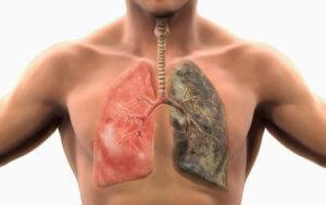Определение объема легких у людей с заболеваниями органов дыхания