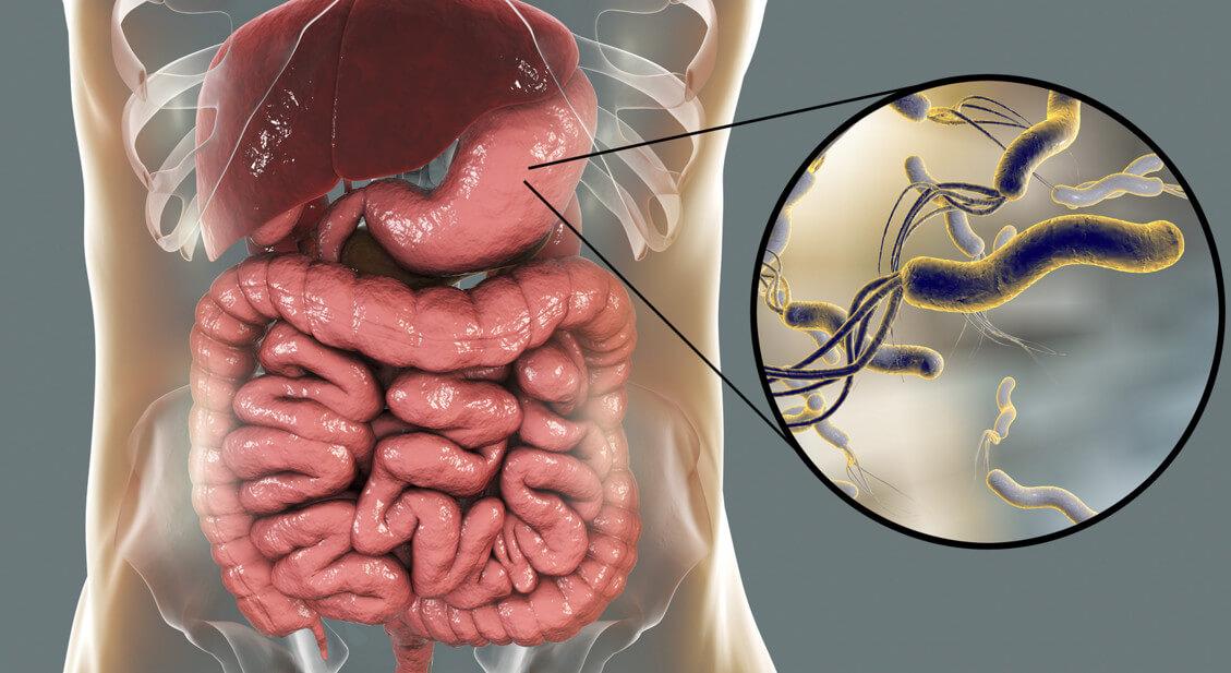 Лекарство от хеликобактер: разработанная схема приема препаратов