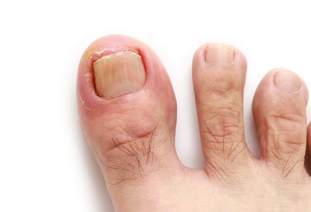 Что такое панариций: симптомы, осложнения и профилактика