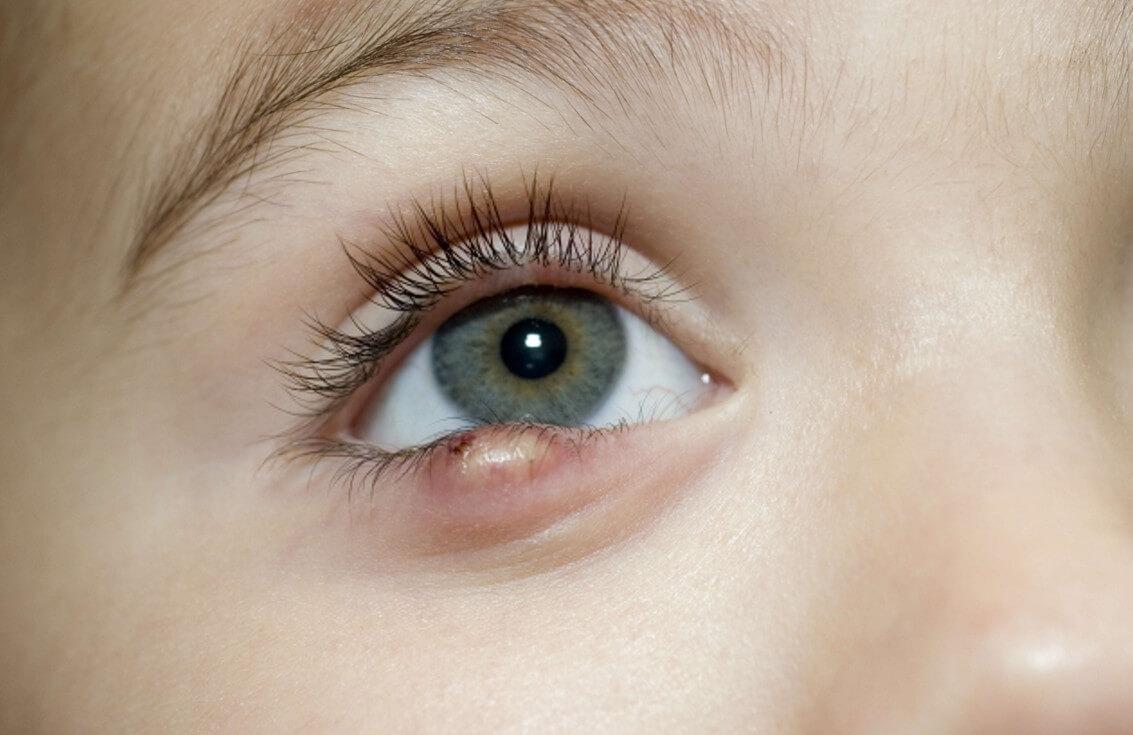 Чем лечат ячмень на глазу: способы применения эффективных лекарств и народных рецептов