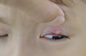 Какие действия принесут вред при ячмене на глазу