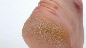 Проблемы, к которым приводят трещины на пятках