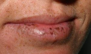 Пигментация на губах с поражением ЖКТ