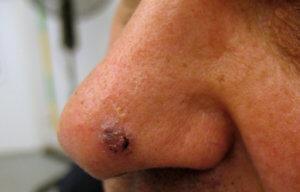 Образование базалиомы на голове и лице
