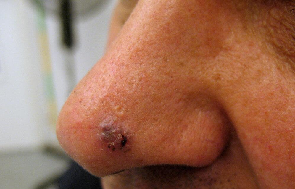 Базально-клеточный рак кожи: как его самостоятельно диагностировать