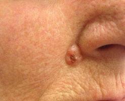 Опасность базалиомы на лице