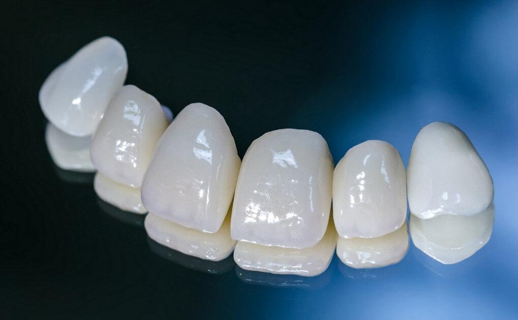 Какие бывают виды зубных коронок, как выбрать лучший вариант
