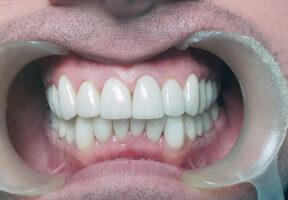Виды коронок для жевательных зубов