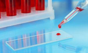 Повышение уровня кальция в плазме крови