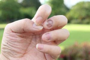 Как лечить грибок ногтей на руках: стадии и рецепты народной медицины