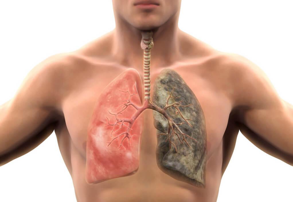 Рак легких: первые признаки, диагностические мероприятия и лечение