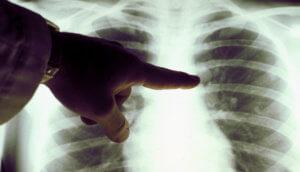 Флюорография легких для выявления онкологии