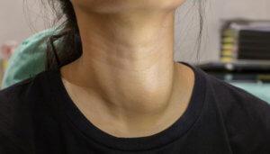 Проявление зоба щитовидной железы