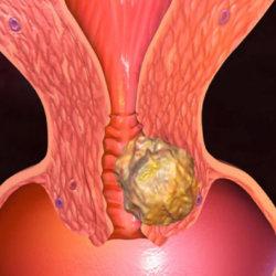 Онкология шейки матки: симптомы и меры профилактики