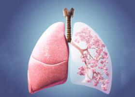 Консервативное лечение дыхания Биота