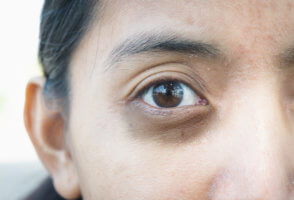 Косметологические процедуры против темных кругов под глазами