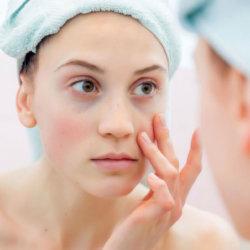 Как убрать синие круги под глазами и почему они появляются