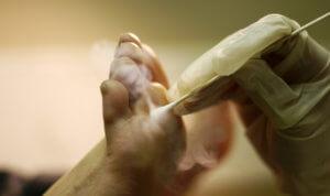 Методы лечения подошвенных бородавок
