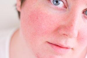 Средства от купероза на лице: простые решения для сложных проблем