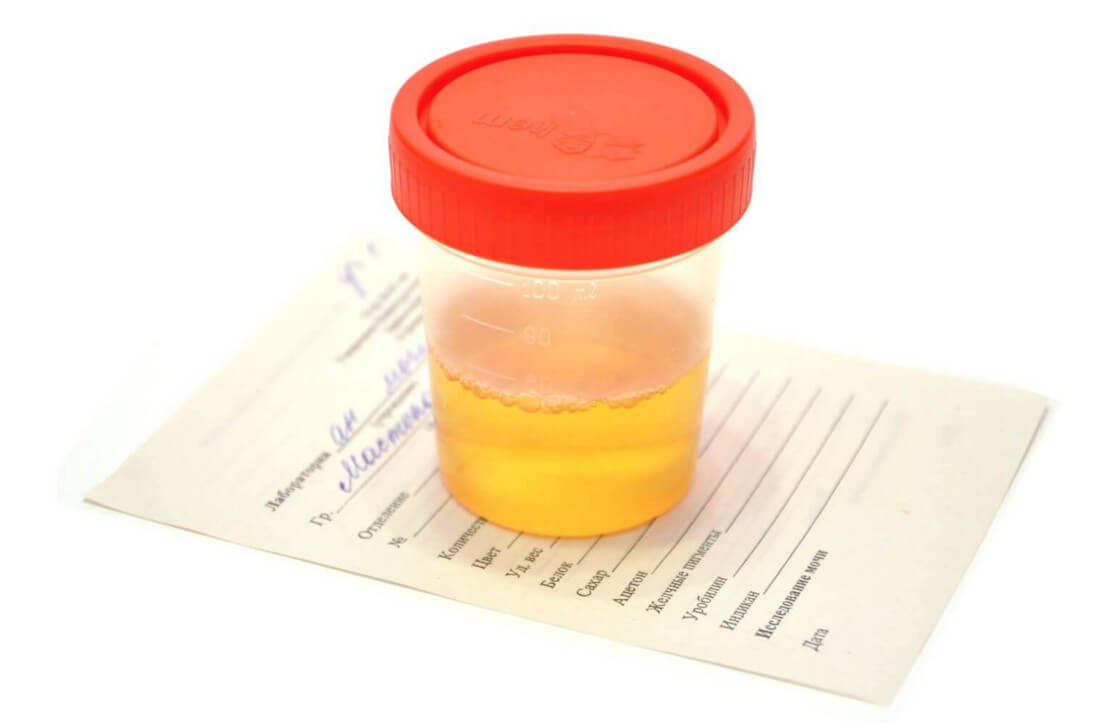 Цилиндры в моче: что такое цилиндрурия и как выявить патологию