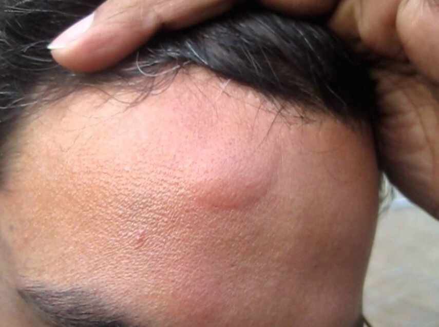 Остеома лобной пазухи: этиология, клиническая картина, методы исследования и лечения опухоли
