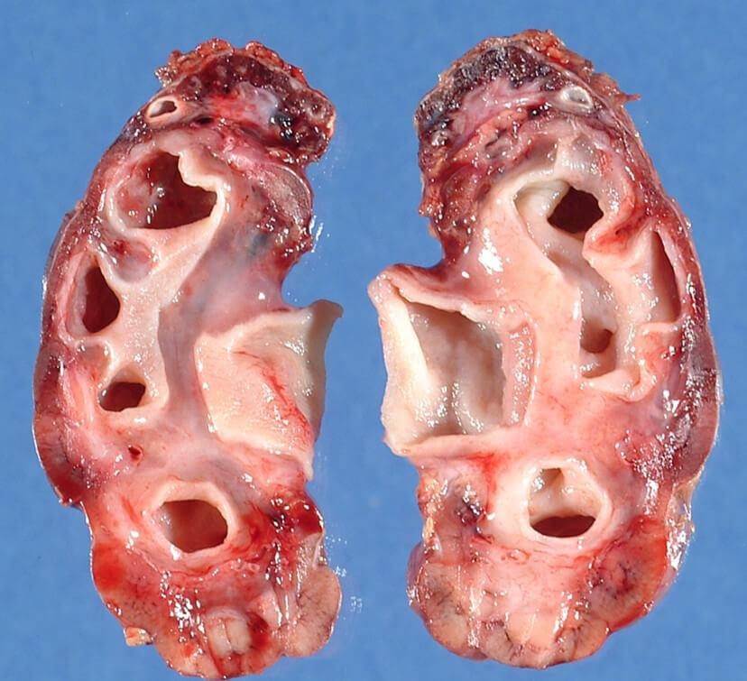 Гидронефроз левой почки: как обнаружить и методы лечения