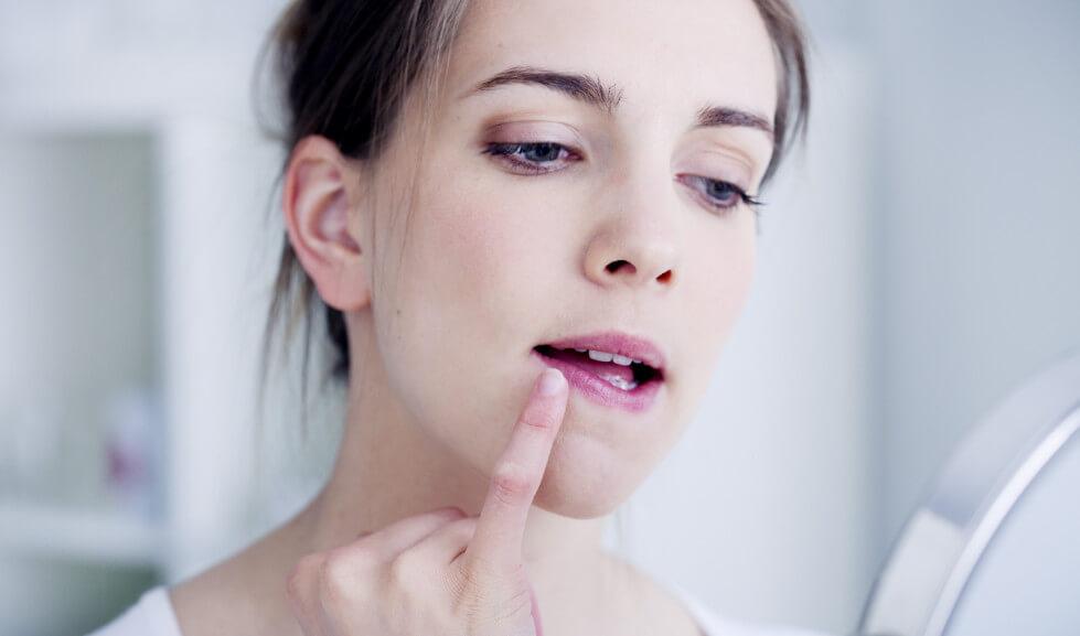 Мазь от простуды на губах: список препаратов, терапия герпеса у детей и взрослых, меры профилактики