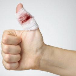 Как остановить кровь из пальца: причины, виды кровотечений, первая помощь