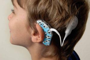 Кохлеарная имплантация при нарушении слуха