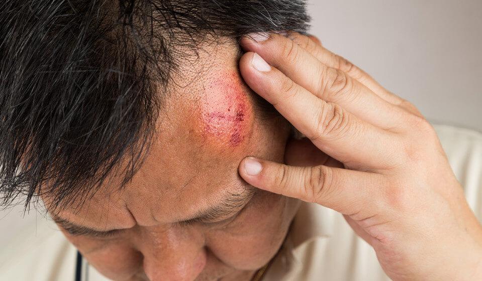 Травмы головы в картинках