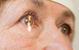 Виды факогенных глауком