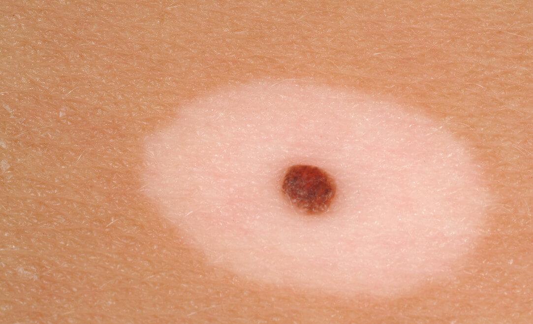 Что такое интрадермальный невус: причины появления, вред, типы удаления