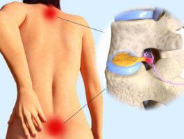 Лечебные процедуры грыжи позвоночника