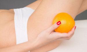 Появление целлюлита из-за гормонального сбоя в организме