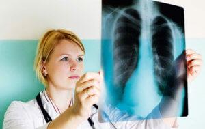 Комплексная терапия пневмосклероза у пожилых людей
