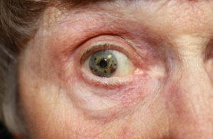 Причины появления ретинопатии