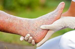 Медикаментозная терапия облитерирующего эндартериита