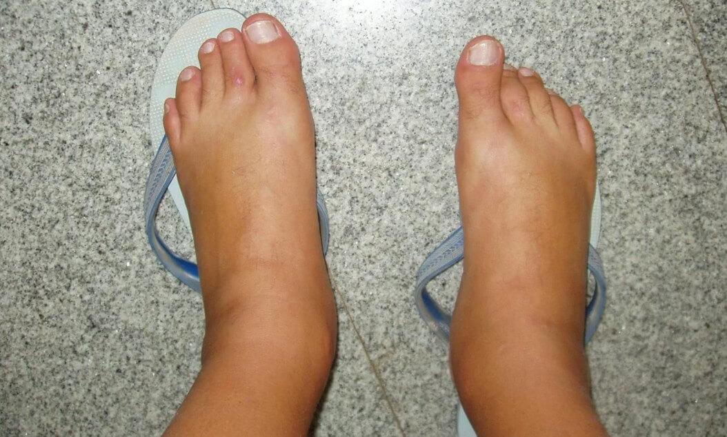 Причины отека ног у женщин: все об этой проблеме и ее лечении