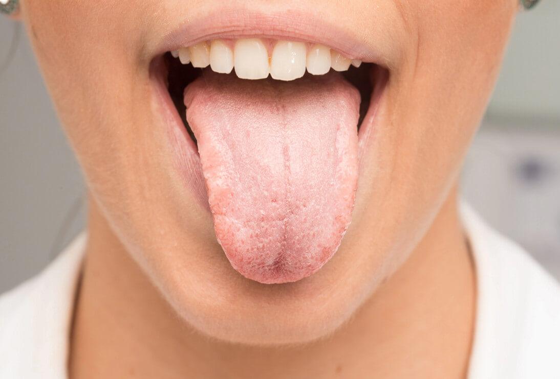 Лечение глоссита препаратами, общие принципы, правила питания, профилактика