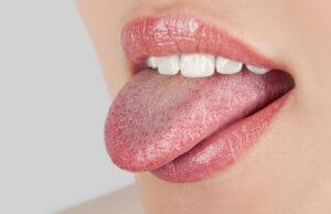 Глоссит, как осложнение флегмоны