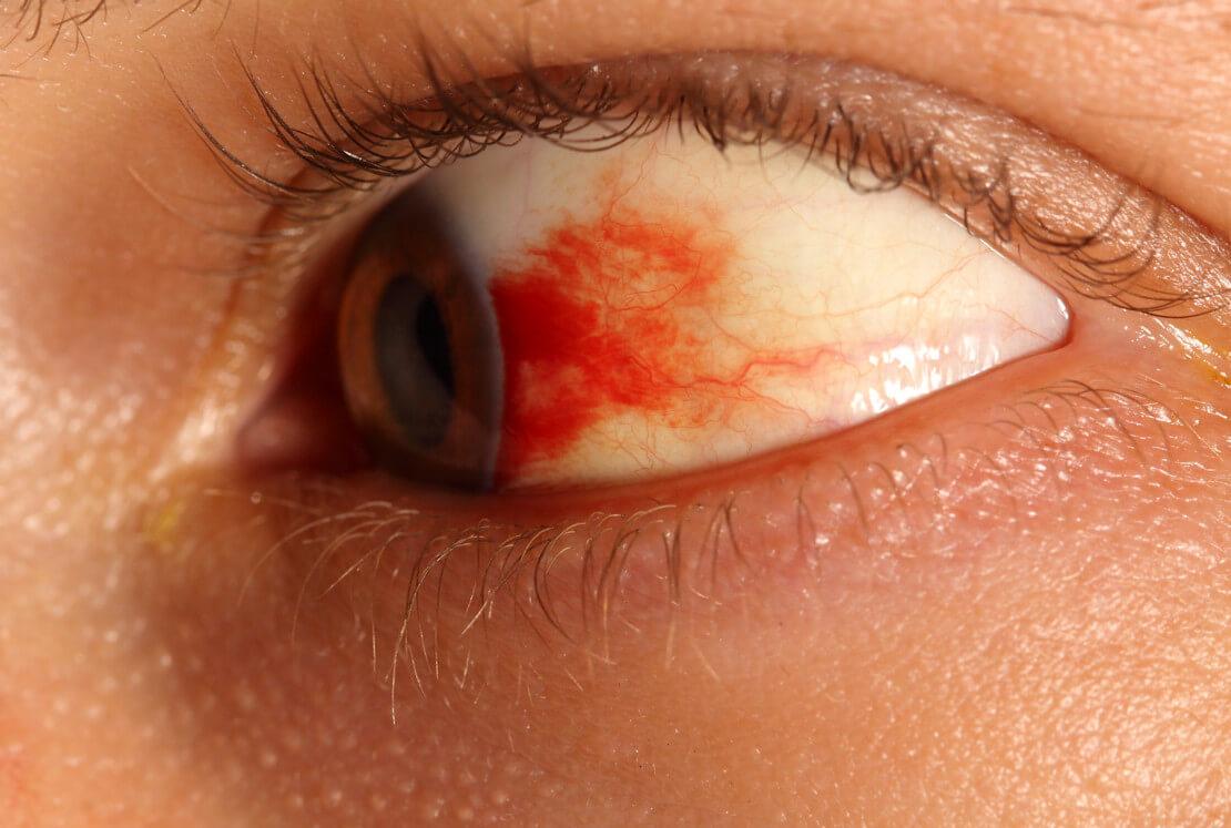 Кровоизлияние в сетчатку глаза: особенности, диагностика и лечение