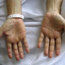 Хронический сифилис: причины его возникновения, течение болезни и ее терапия