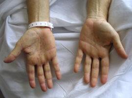 Переход сифилиса в хроническую форму