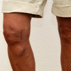 Признаки артроза коленного сустава: причины, стадии заболевания, как лечить