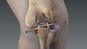 Хирургическое вмешательство при артрозе