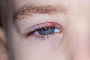 Симптомы инфицирования глаза