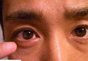Осложнения после чирия в виде шишки