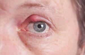 Фурункул в области глаза