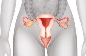 Бесплодие после перенесенного аднексита